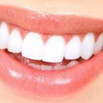 เปลี่ยนฟันพังๆให้ปังขึ้นได้ ด้วยการทำวีเนียร์